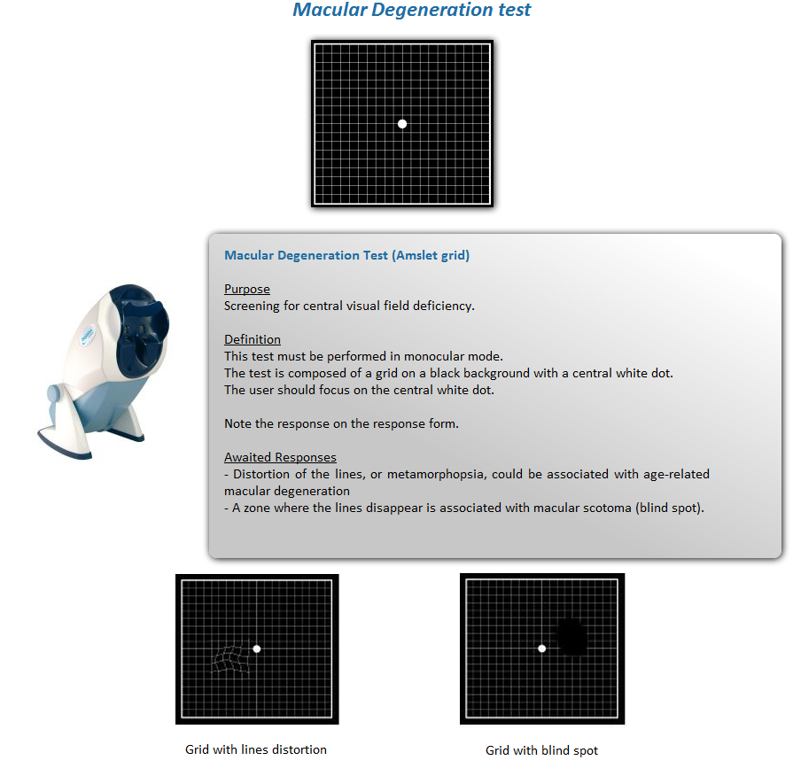 an examination on depth perception Thank you for purchasing the vision assessment corporation random dot e depth perception test p/n 1015 purpose this test is designed to rapidly test for amblyopia.